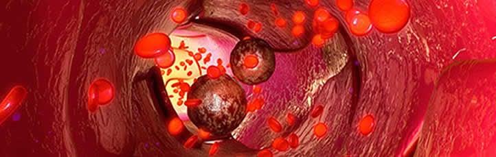 Ilustração mostrando a circulação nos vasos sanguíneos