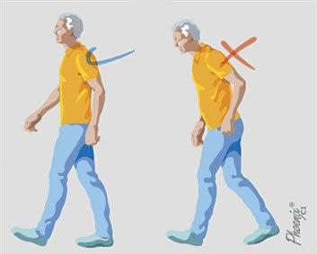 Postura correta ao caminhar: dicas e orientações posturais em osteoartrite
