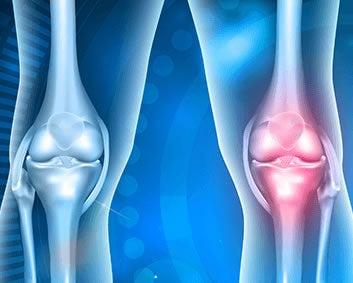 Osteoartrite uma doença das articulações: ilustração de articulações do joelho com característica de osteoartrite